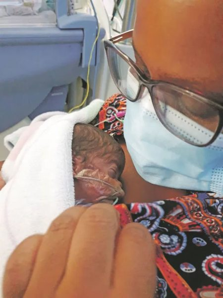 Covid-19 patient gives birth miraculously while unconscious