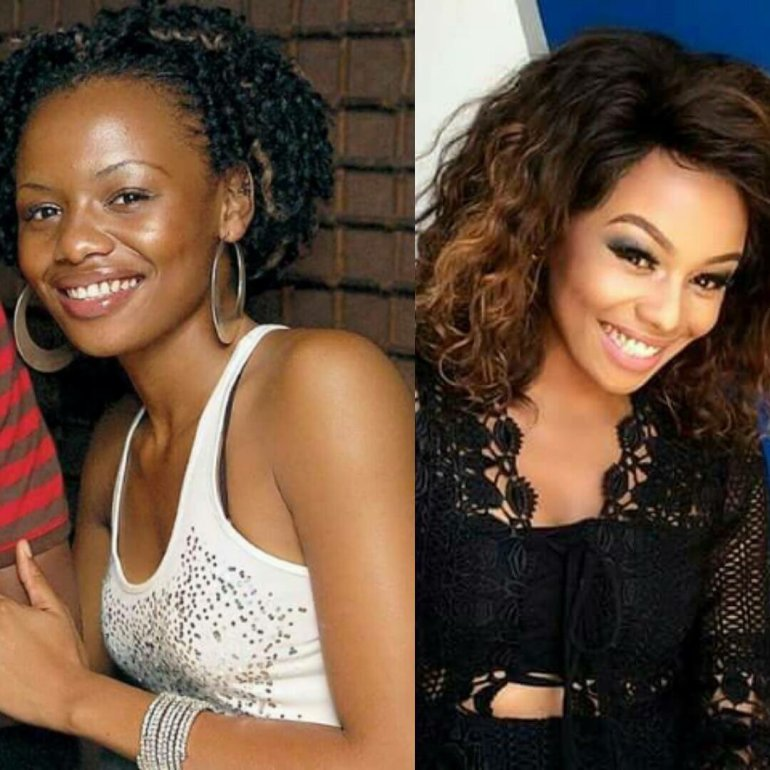 Mzansi Celebs Who Have Undergone Cosmetic Surgery