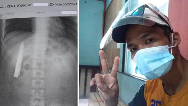Man (25) had no idea he had a knife blade stuck inside his chest for more than a year