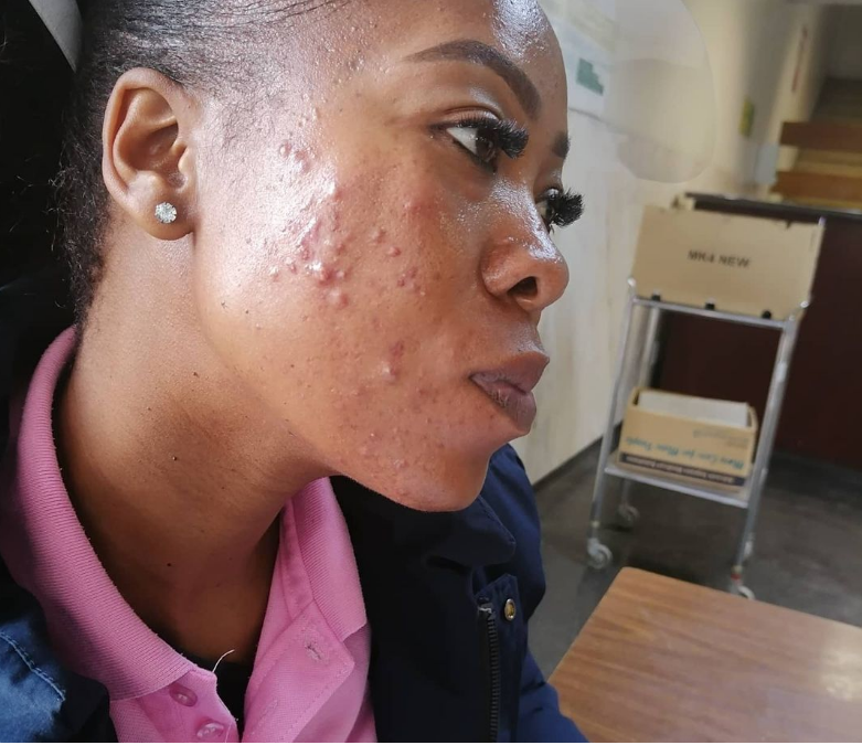 PHOTOS: SKOLOPAD STRUGGLING TO GET BOOKED AFTER AMID ACNE CAUSED BY FACE MASK